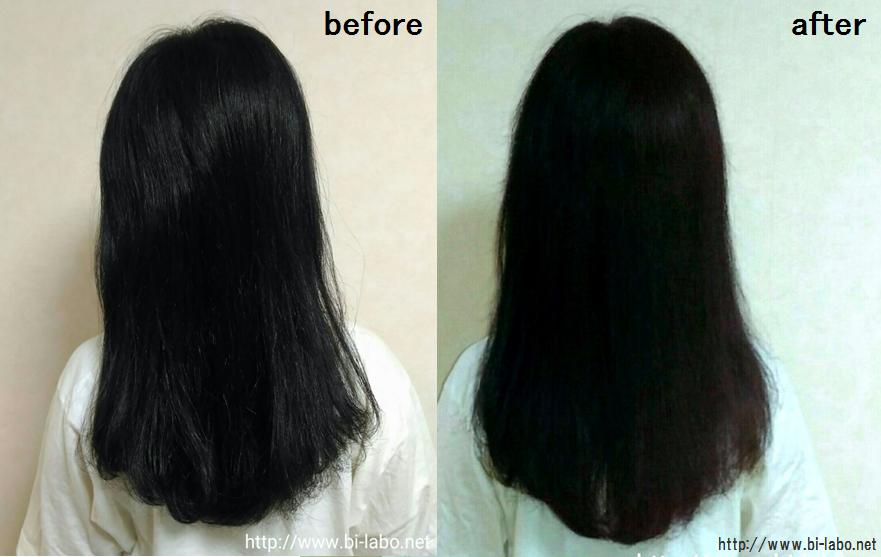 アクセルレーターで髪がめちゃくちゃ早く伸びた 1ヶ月使って効果を